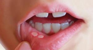 Phòng và điều trị bệnh nhiệt miệng